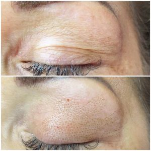 Plasma Skin Tightening Treatment Sophia Wyatt